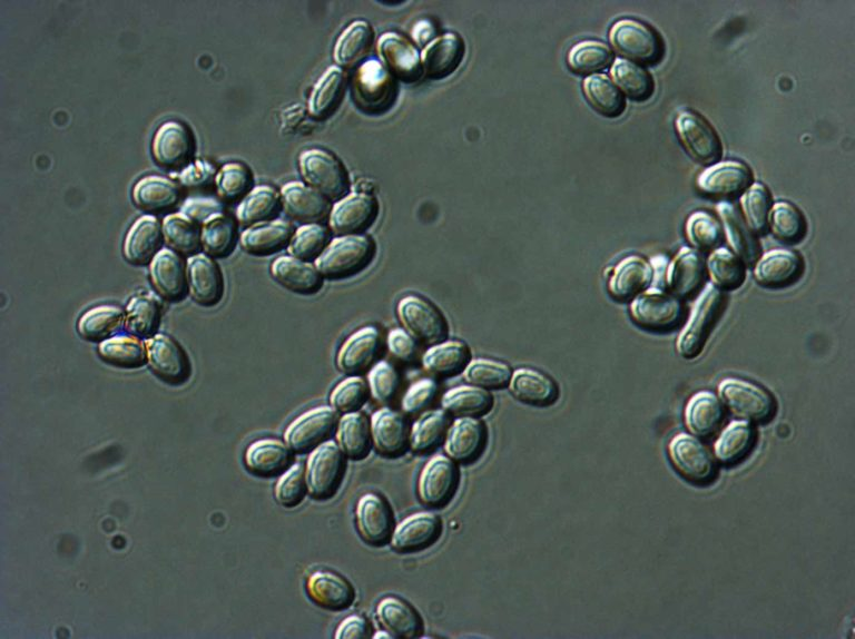 Differential Interference Contrast Microscopy (LM-DIC or Nomarski) image of fungal spores in citrus fruit. Image Width is 84µm. Photo by Jaap Nijsse, Consistence Microstructure Research Laboratory.